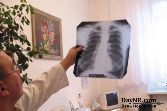 Поляки опасаются, что украинцы завезут в страну туберкулёз